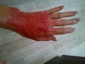 brandi glanville hand